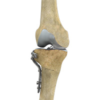 High Tibial Osteotomy