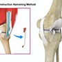 ACL Reconstruction Hamstring Method