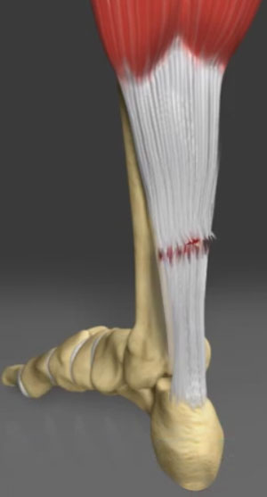 Achilles Tendon Tear Repair