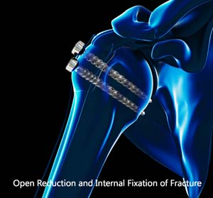 Open Reduction and Internal Fixation of Proximal Humerus Fracture